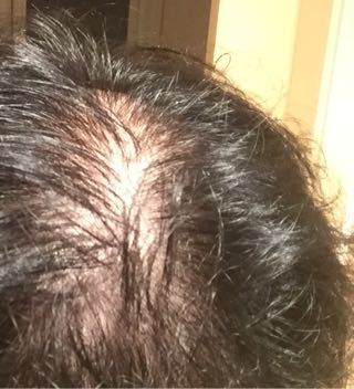 ゆうげん頭皮近影